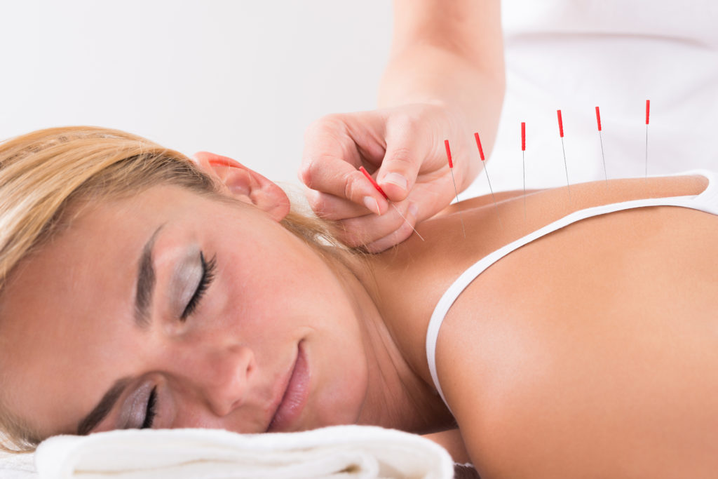 Image of acupuncture on a pregnant woman
