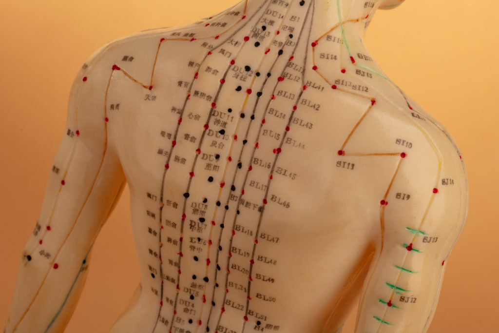 Image showing Acupuncture points that heal the body