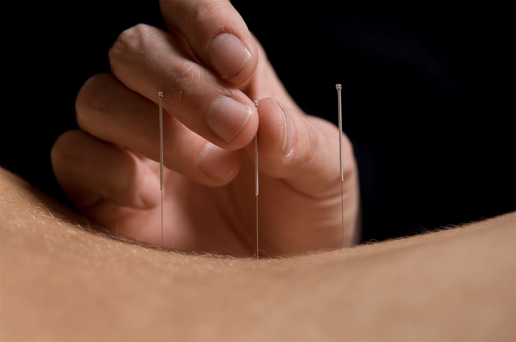Acupuncture can releive back pain